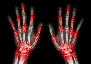 ce este factorul reumatoid)